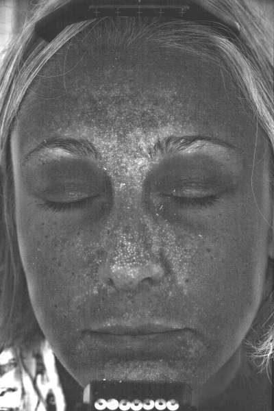 Visualisation des porphyrines (P. acnes)