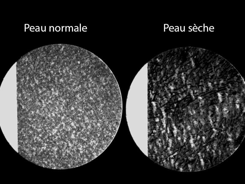 Exemple de prélèvements D'Squames sur 2 types de peau